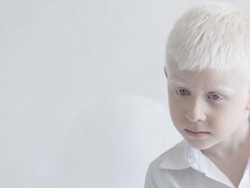 Albino hastalığı nedir?