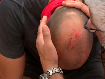 Sercan kafasını parkura vurdu